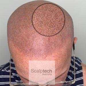 scalp micropigmentation brisbane